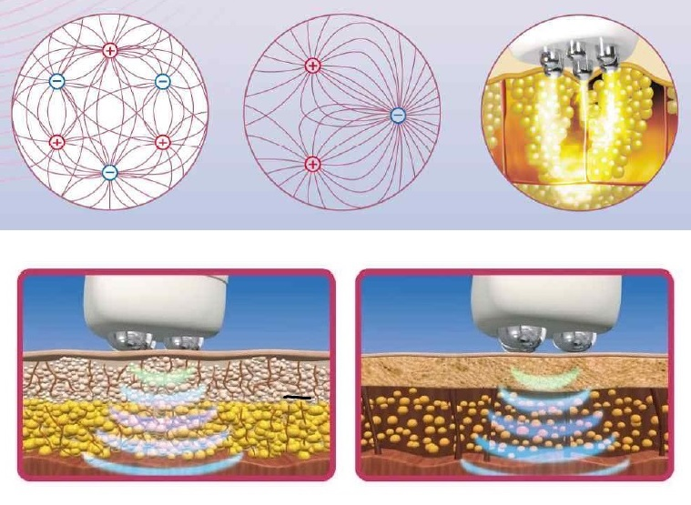 actiunea radiofrecventei in eliminarea celulitei
