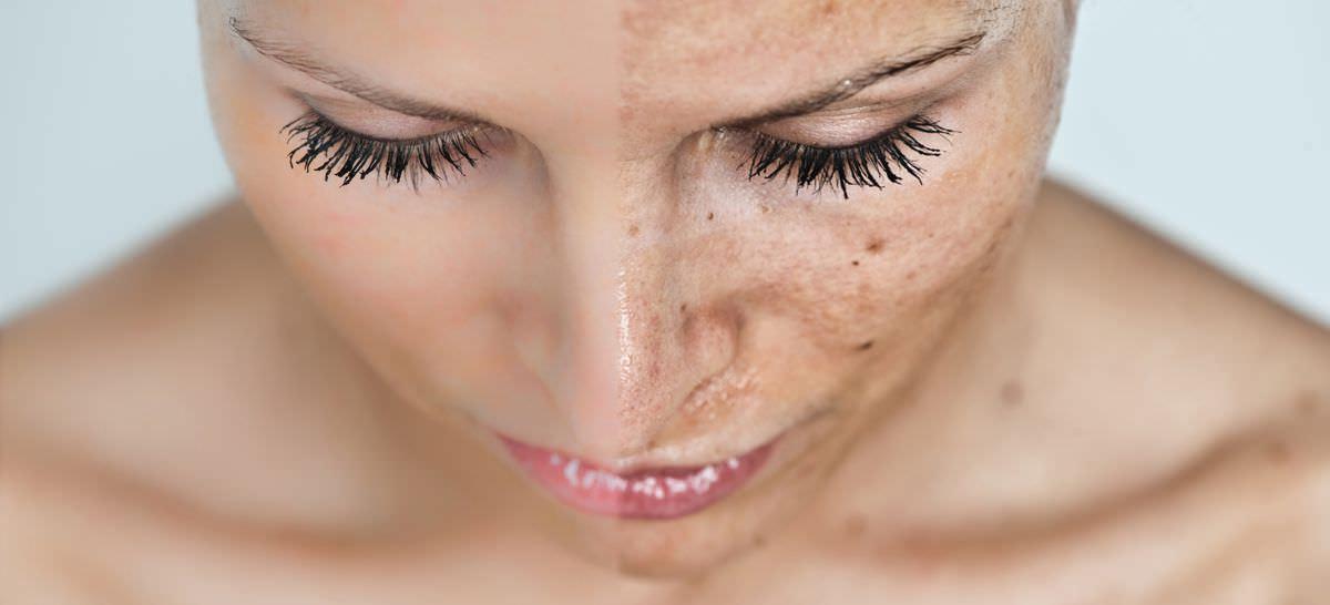 Despre fotoregenerarea faciala