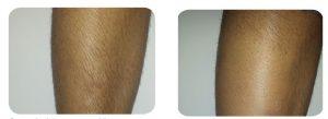 epilare definitiva laser inainte / dupa 3 sedinte Elysion