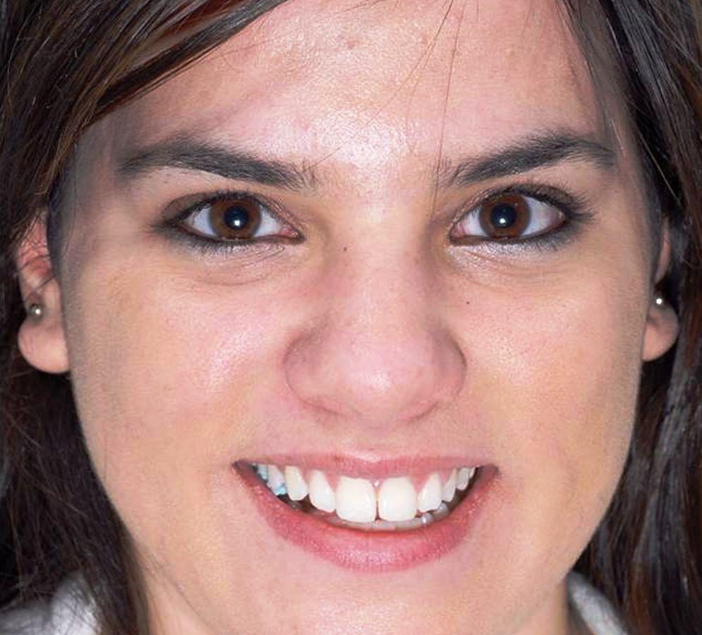 fotoregenerare faciala SPL acnee dupa