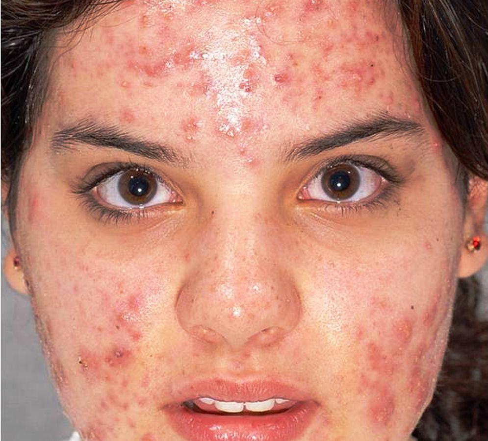 fotoregenerare faciala SPL acnee inainte