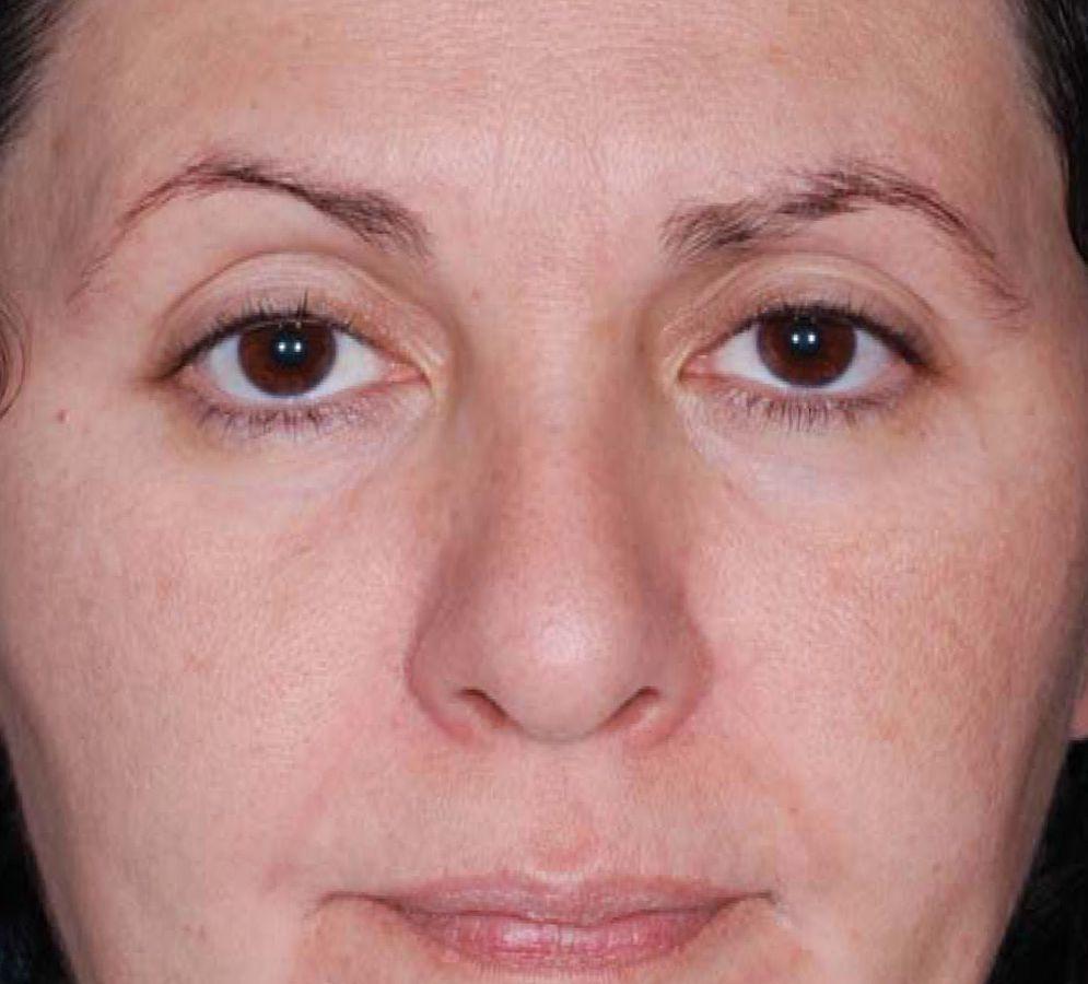fotoregenerare faciala SPL pete pigmentare dupa