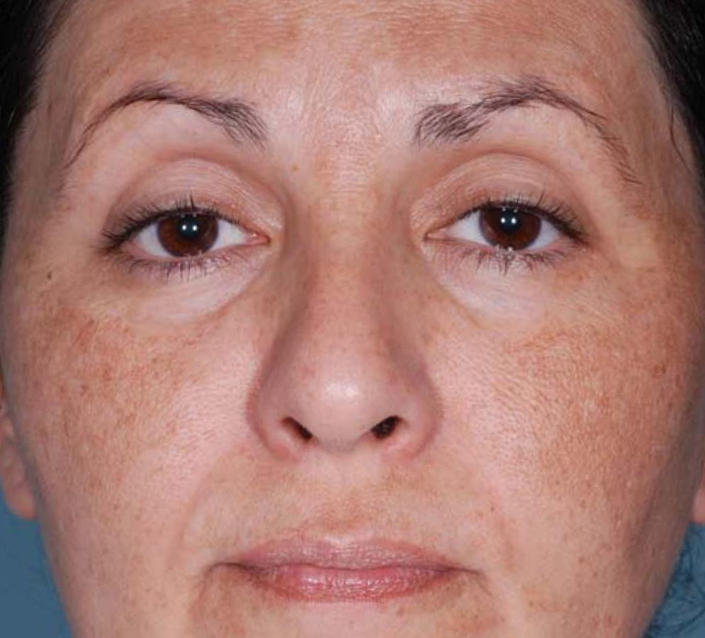 fotoregenerare faciala SPL pete pigmentare inainte