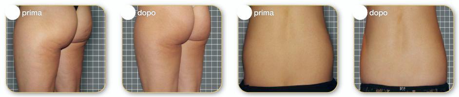 rezultate cavitatie ultrasunete